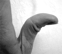 Flexible Thumb
