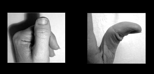 Murderer's Thumbs